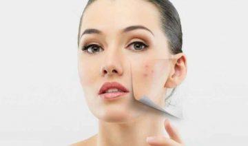 Macchie sulla pelle: meglio curarsi con le creme fai da te o farmacologiche?