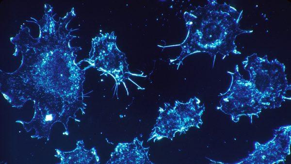 Scoperta proteina centrale nello sviluppo dei tumori