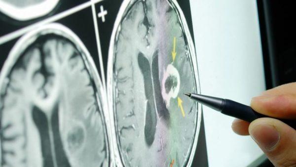 Scoperto il neurone bifronte causa della Sclerosi laterale amiotrofica