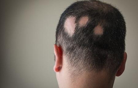 Alopecia areata: come combatterla con i rimedi naturali