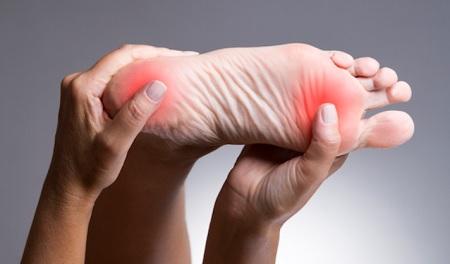 5 suggerimenti per prevenire i calli ai piedi