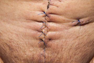 Cicatrici: cosa sono e trattamento chirurgico