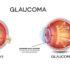 Trattamento e prevenzione del glaucoma