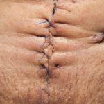 Filo per suture: a cosa serve e dove si può acquistare
